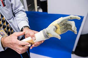 Electrodes and prosthetics
