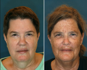 Identical twins; one smoked for 16 years longer than the other. Can you guess who the smoker is? Source: Plastic and Reconstructive Surgery 2013;132(5).