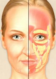 Facial Fat Age, 45