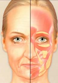 Facial fat age 55