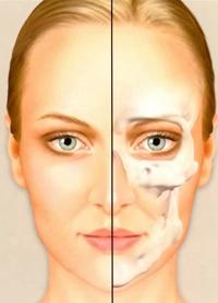 Aging of the craniofacial bones. Age 35