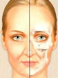Aging of the craniofacial bones. Age 45
