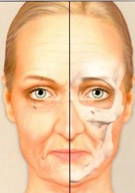 Aging of the craniofacial bones. Age 55
