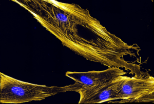 Myoblasts fibers (yellow) -- precursor to muscle cells -- and nuclei in blue.