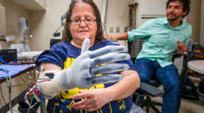 Karen Sussex, an upper-limb amputee from Jackson, Mich., operates a Touch Bionics I-LIMB prosthetic hand