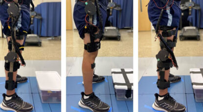 exoskeletons on man's leg
