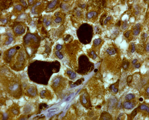 Above: This microscope image shows melanoma cells from a tumor, magnified 600 times. The three large, dark-brown cells contain high levels of the pigment melanin. Photo courtesy Mark Shackleton.